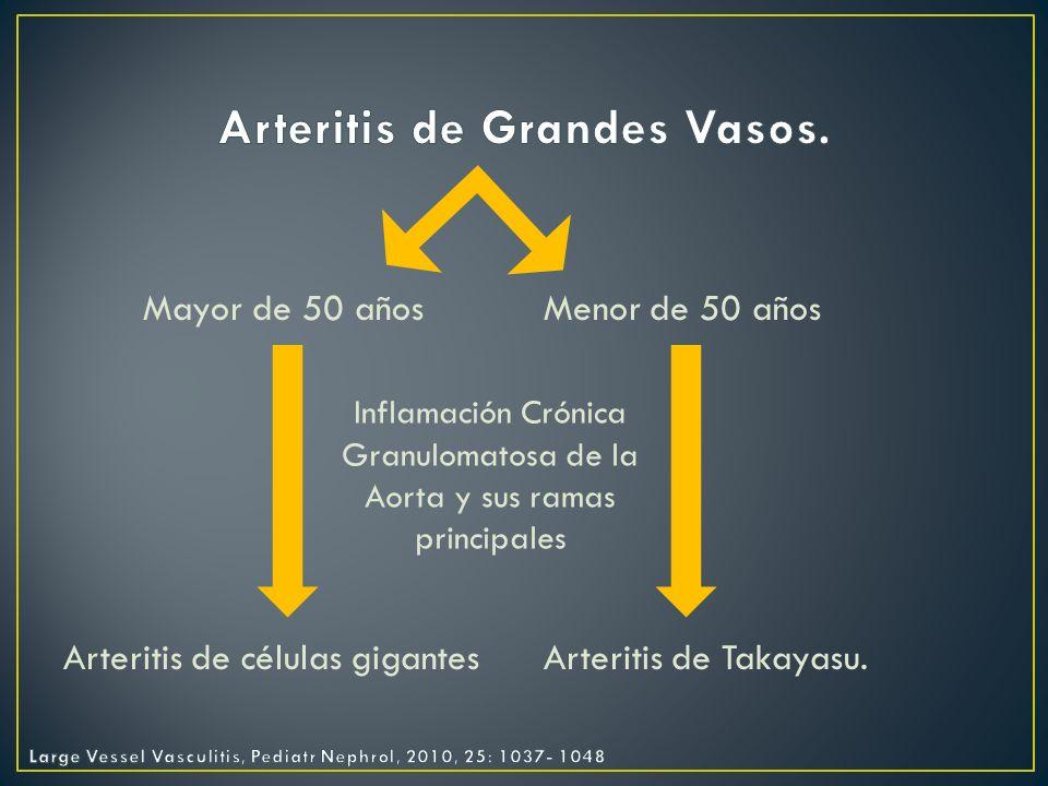 Arteritis de Grandes Vasos.