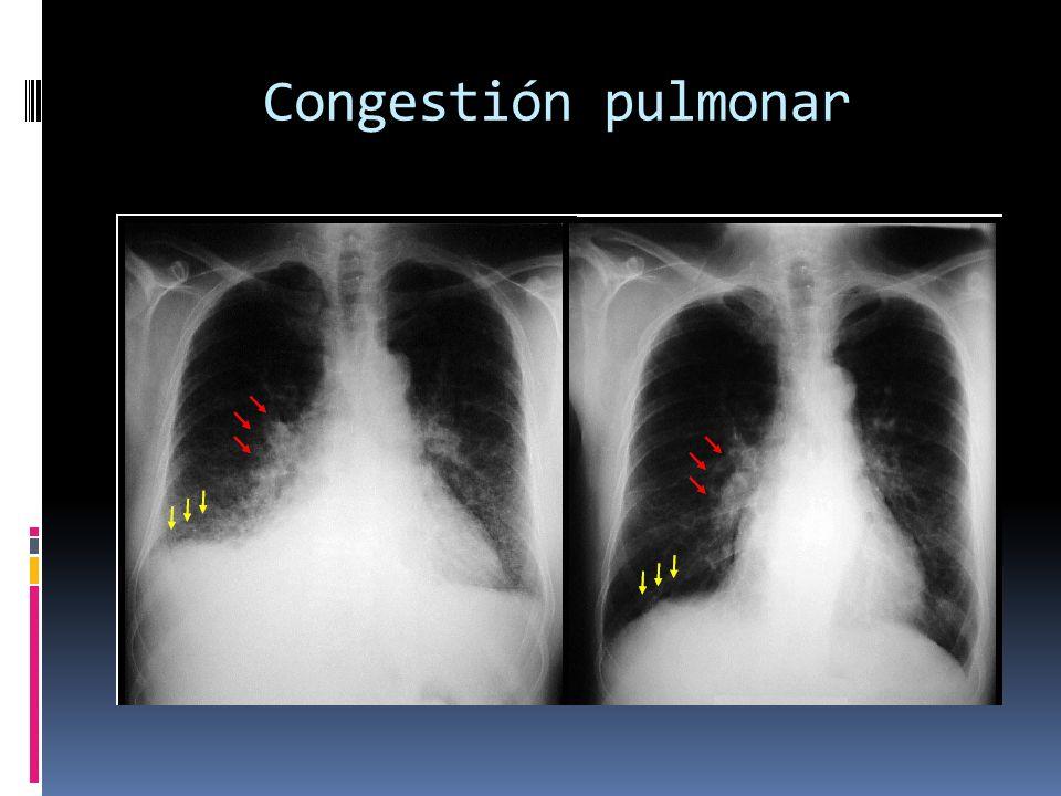 Congestión pulmonar