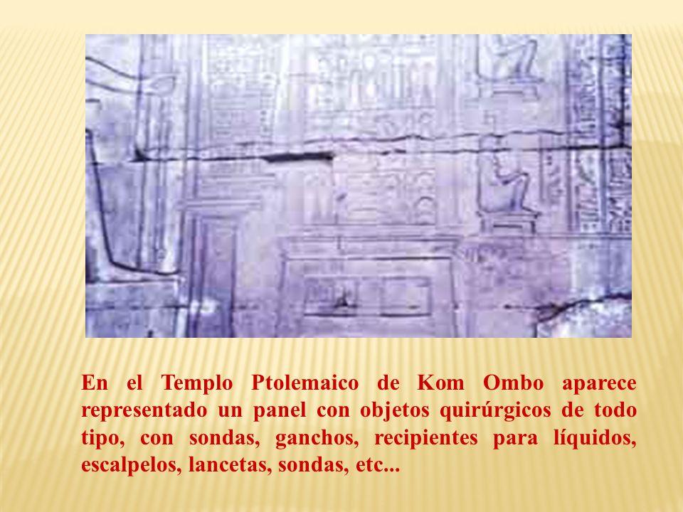 En el Templo Ptolemaico de Kom Ombo aparece representado un panel con objetos quirúrgicos de todo tipo, con sondas, ganchos, recipientes para líquidos, escalpelos, lancetas, sondas, etc...