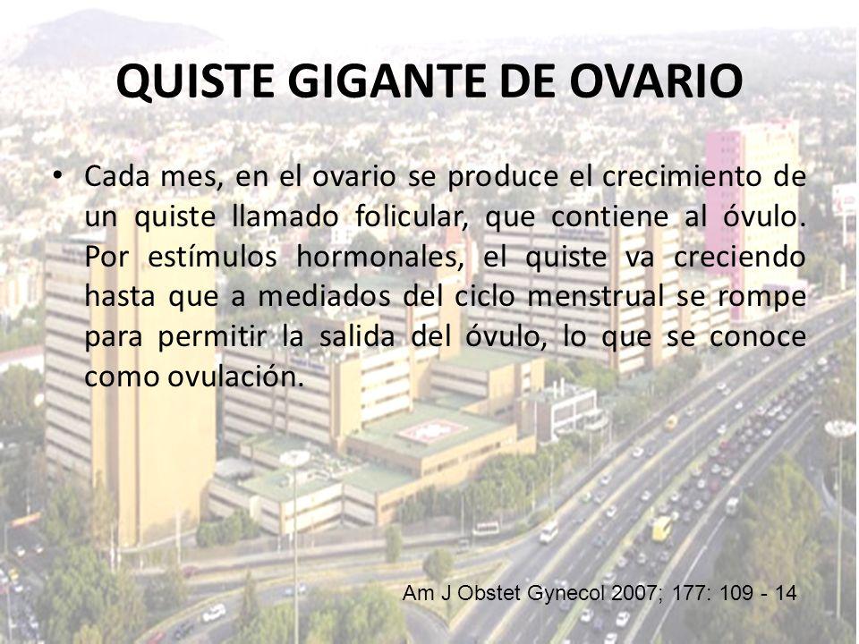 QUISTE GIGANTE DE OVARIO