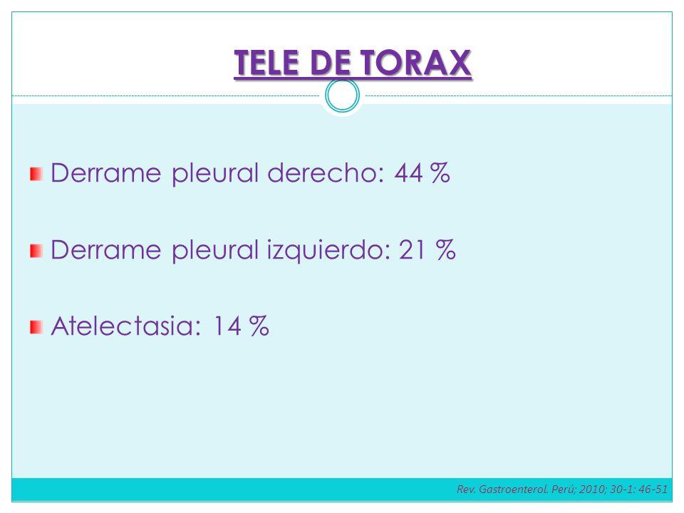 TELE DE TORAX Derrame pleural derecho: 44 %