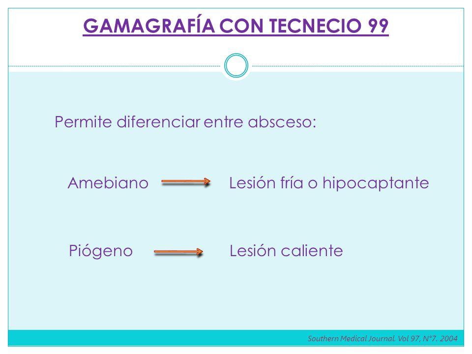 GAMAGRAFÍA CON TECNECIO 99