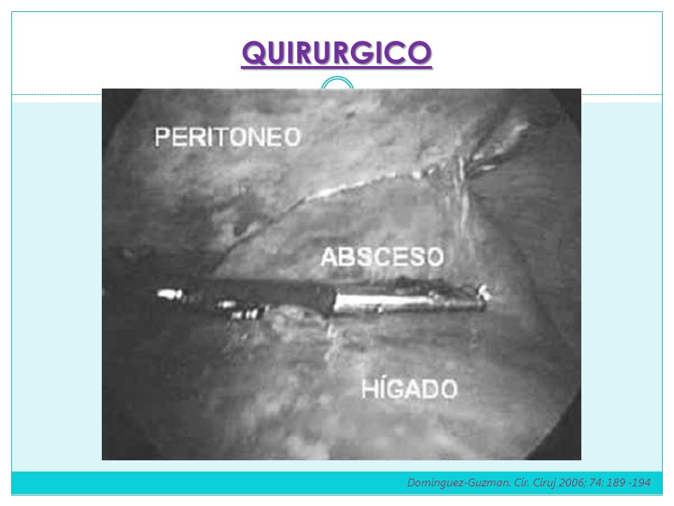 QUIRURGICO Dominguez-Guzman. Cir. Ciruj 2006; 74: 189 -194