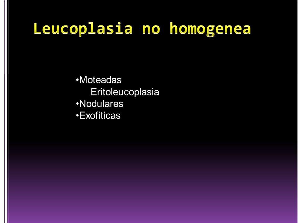 Leucoplasia no homogenea