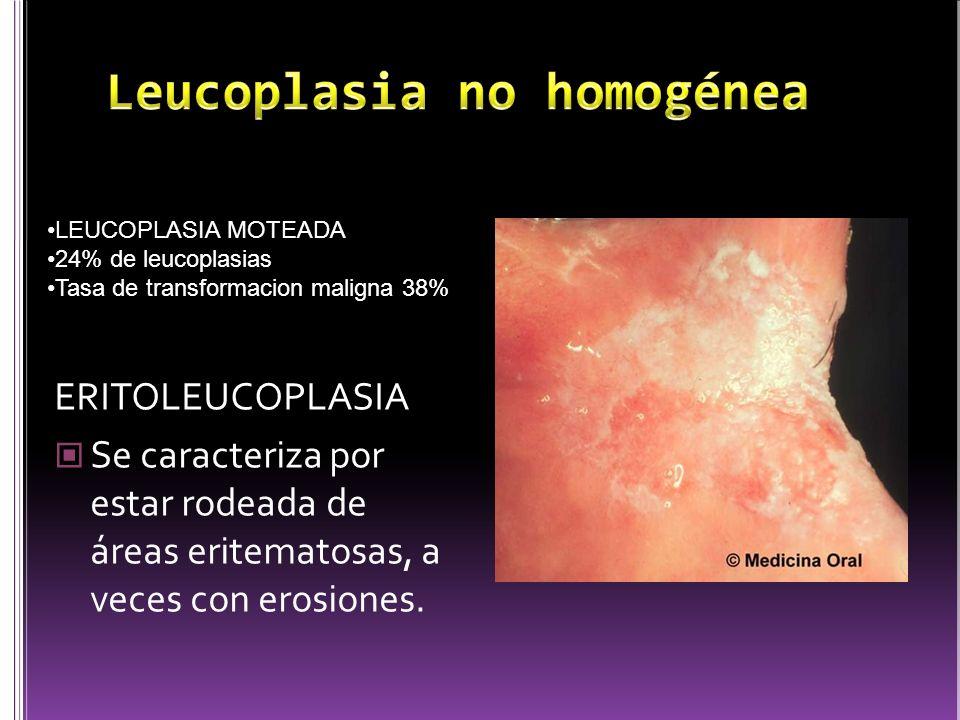 Leucoplasia no homogénea