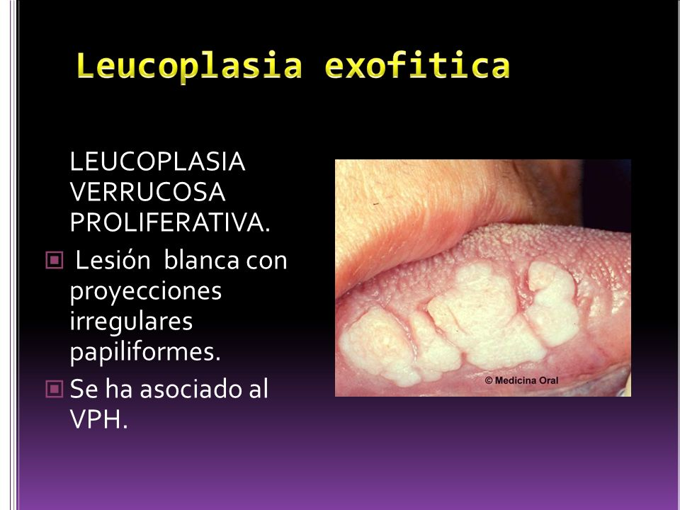 Leucoplasia exofitica