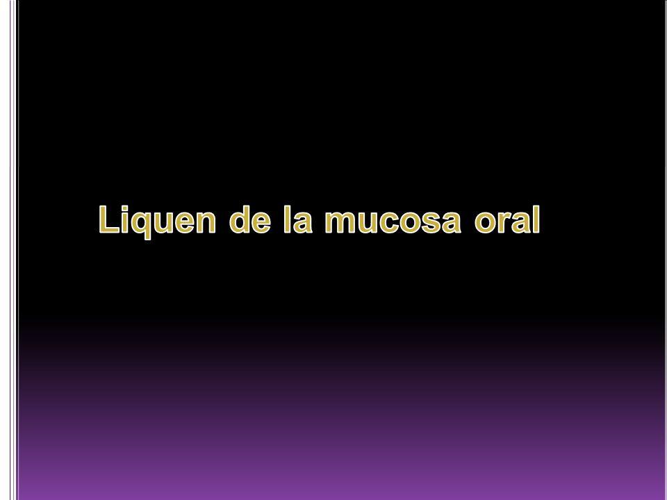 Liquen de la mucosa oral