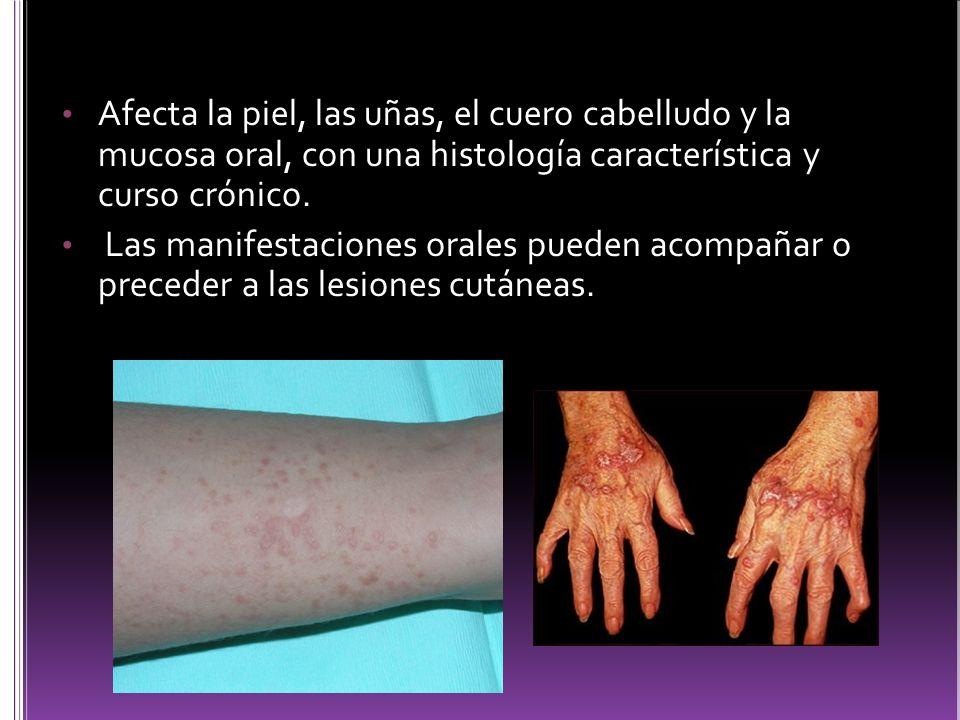 Afecta la piel, las uñas, el cuero cabelludo y la mucosa oral, con una histología característica y curso crónico.