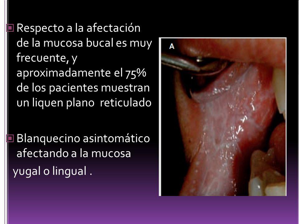 Respecto a la afectación de la mucosa bucal es muy frecuente, y aproximadamente el 75% de los pacientes muestran un liquen plano reticulado