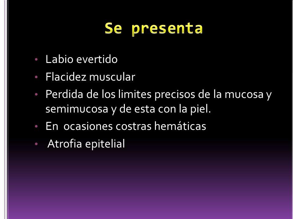 Se presenta Labio evertido Flacidez muscular