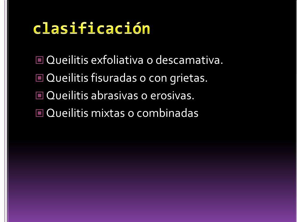 clasificación Queilitis exfoliativa o descamativa.