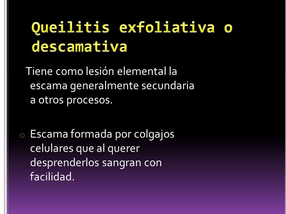 Queilitis exfoliativa o descamativa
