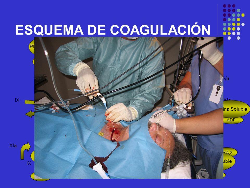 ESQUEMA DE COAGULACIÓN