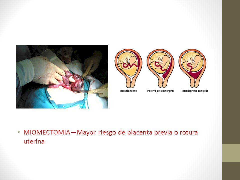 MIOMECTOMIA—Mayor riesgo de placenta previa o rotura uterina