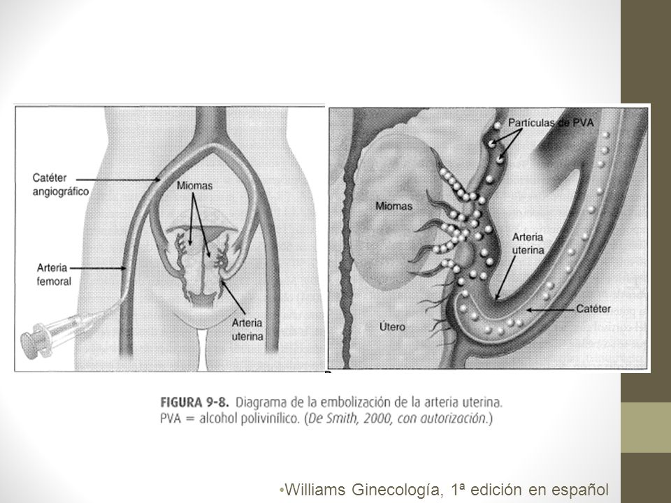 Williams Ginecología, 1ª edición en español