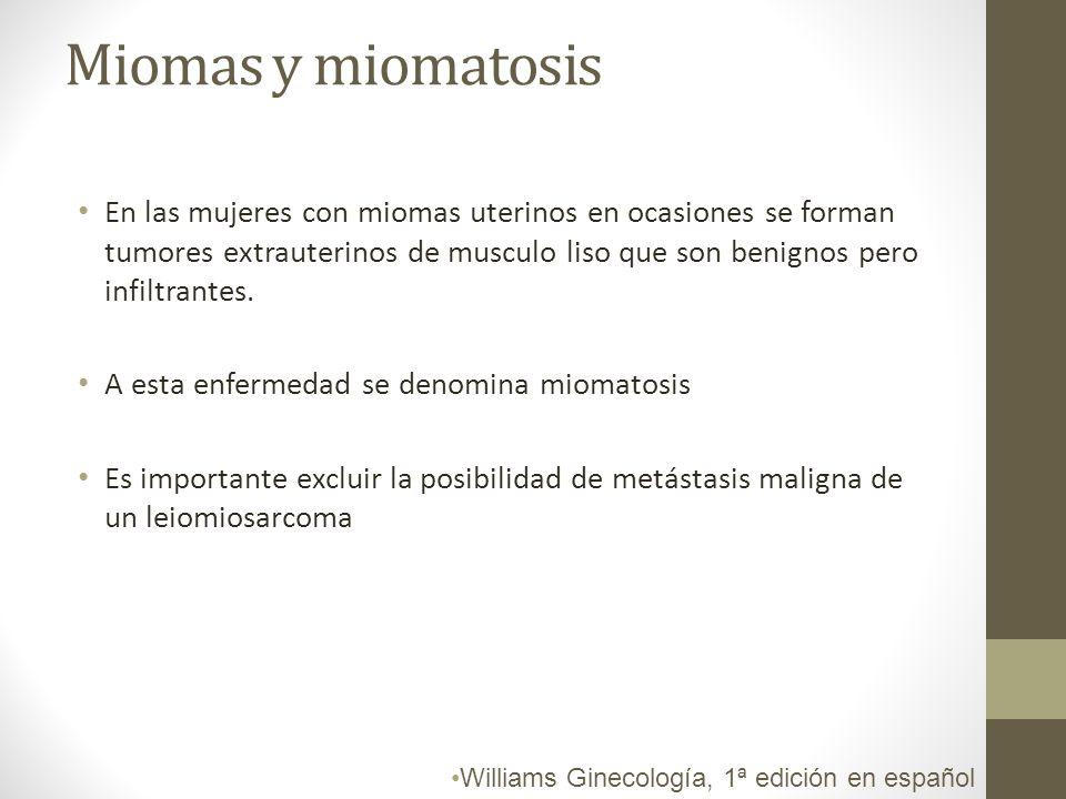 Miomas y miomatosis