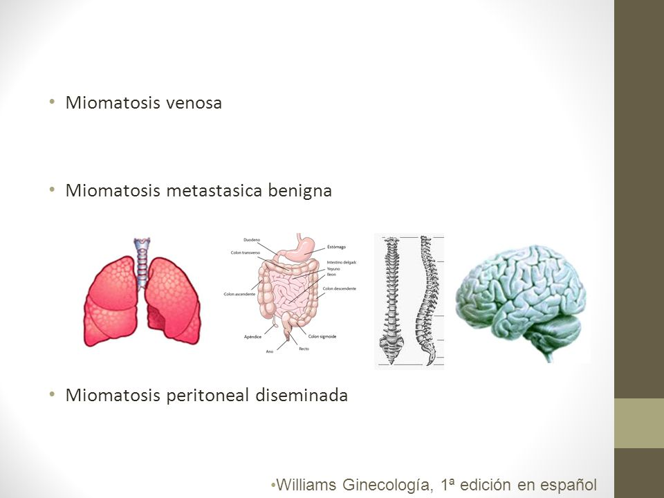 Miomatosis metastasica benigna