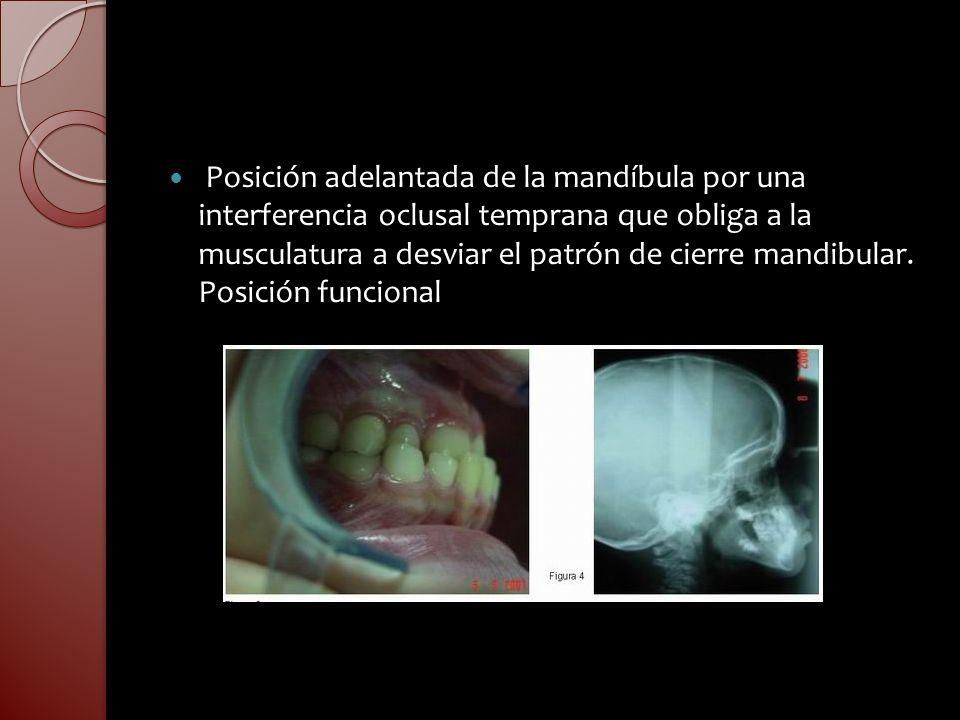 Posición adelantada de la mandíbula por una interferencia oclusal temprana que obliga a la musculatura a desviar el patrón de cierre mandibular.