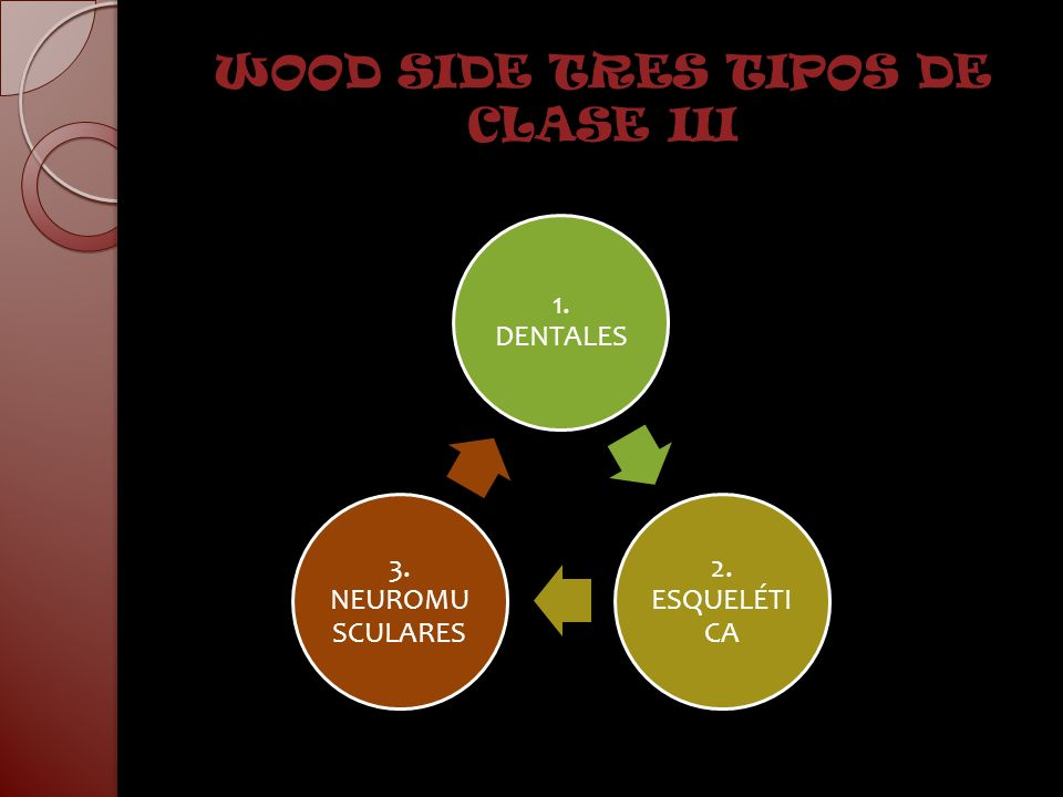 WOOD SIDE TRES TIPOS DE CLASE III
