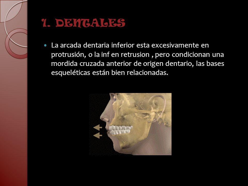 1. DENTALES