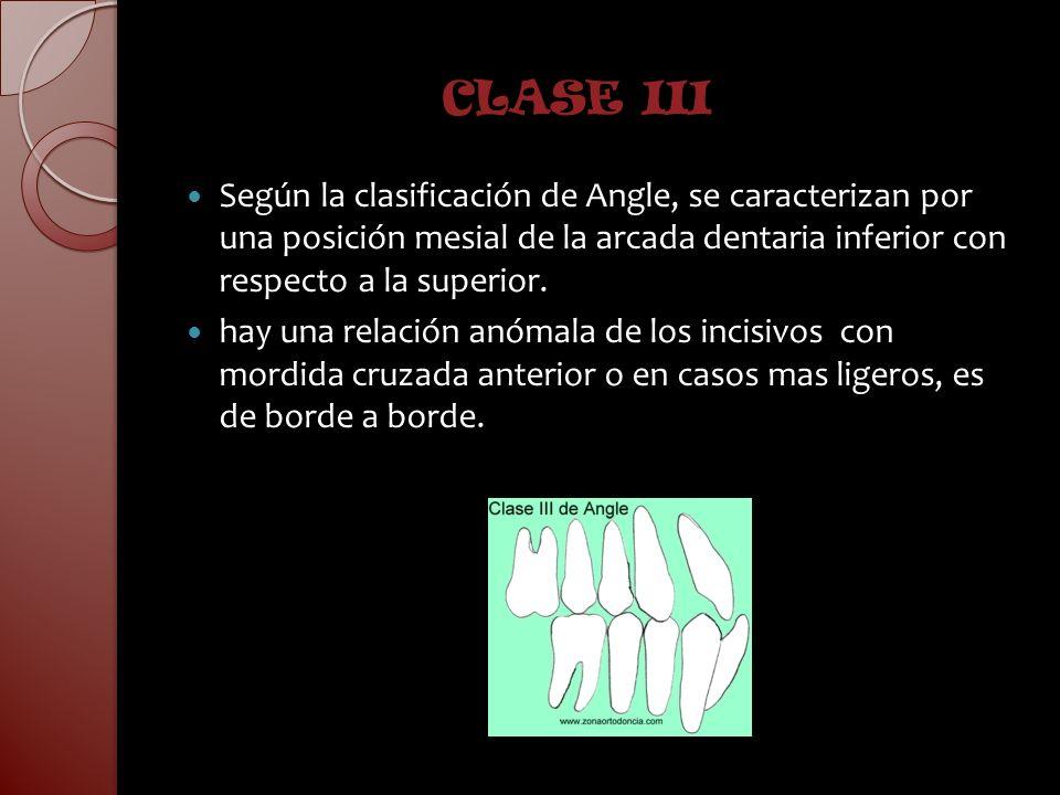 CLASE IIISegún la clasificación de Angle, se caracterizan por una posición mesial de la arcada dentaria inferior con respecto a la superior.