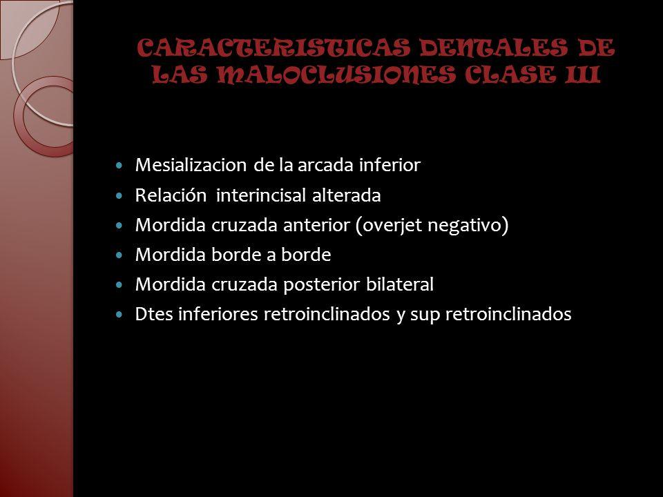 CARACTERISTICAS DENTALES DE LAS MALOCLUSIONES CLASE III