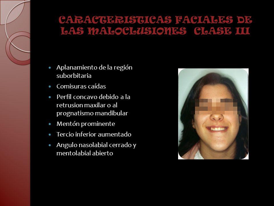 CARACTERISTICAS FACIALES DE LAS MALOCLUSIONES CLASE III