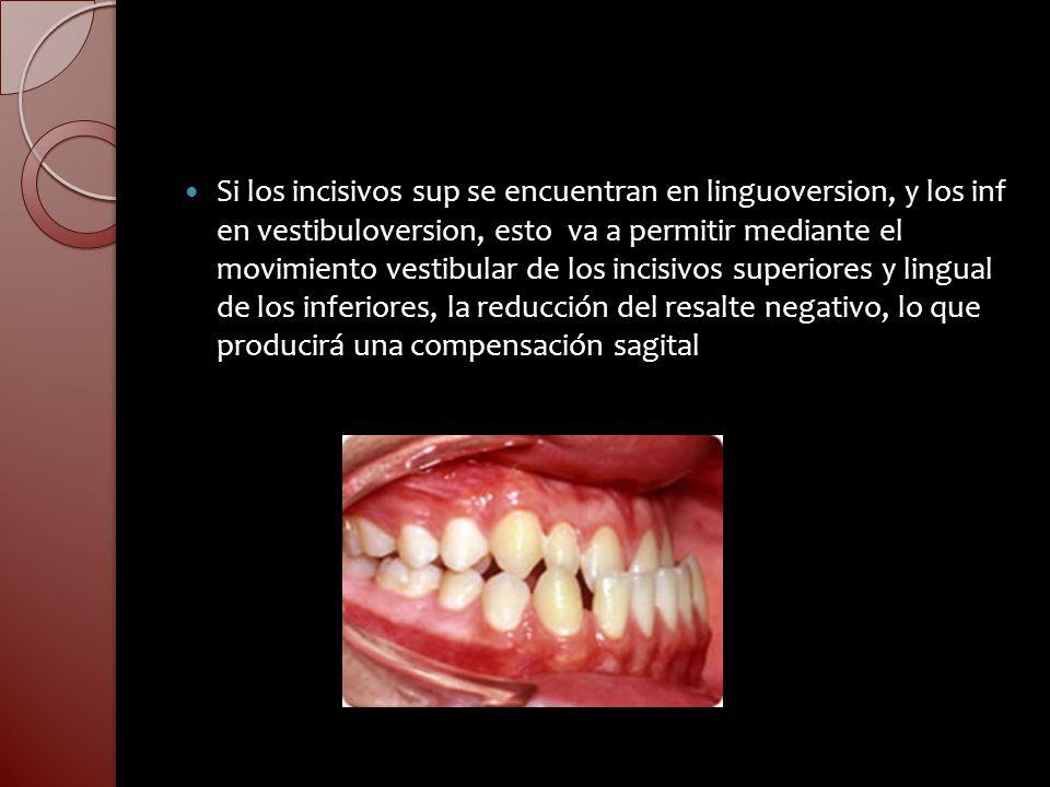 Si los incisivos sup se encuentran en linguoversion, y los inf en vestibuloversion, esto va a permitir mediante el movimiento vestibular de los incisivos superiores y lingual de los inferiores, la reducción del resalte negativo, lo que producirá una compensación sagital