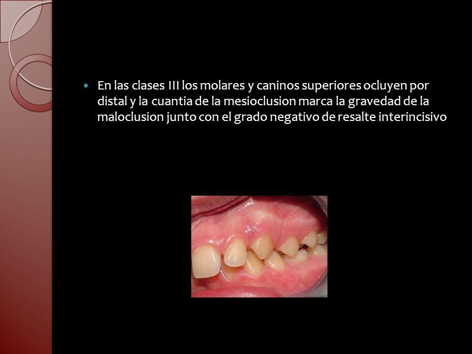 En las clases III los molares y caninos superiores ocluyen por distal y la cuantia de la mesioclusion marca la gravedad de la maloclusion junto con el grado negativo de resalte interincisivo