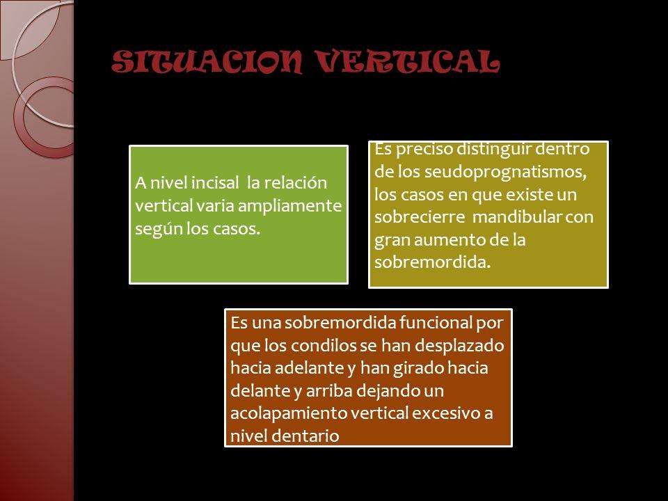 SITUACION VERTICAL A nivel incisal la relación vertical varia ampliamente según los casos.