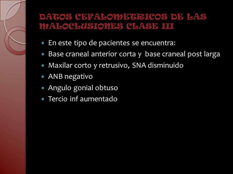 DATOS CEFALOMETRICOS DE LAS MALOCLUSIONES CLASE III