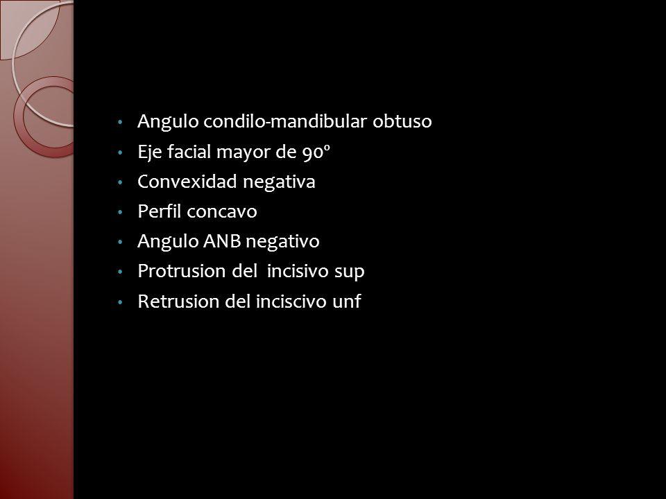 Angulo condilo-mandibular obtuso
