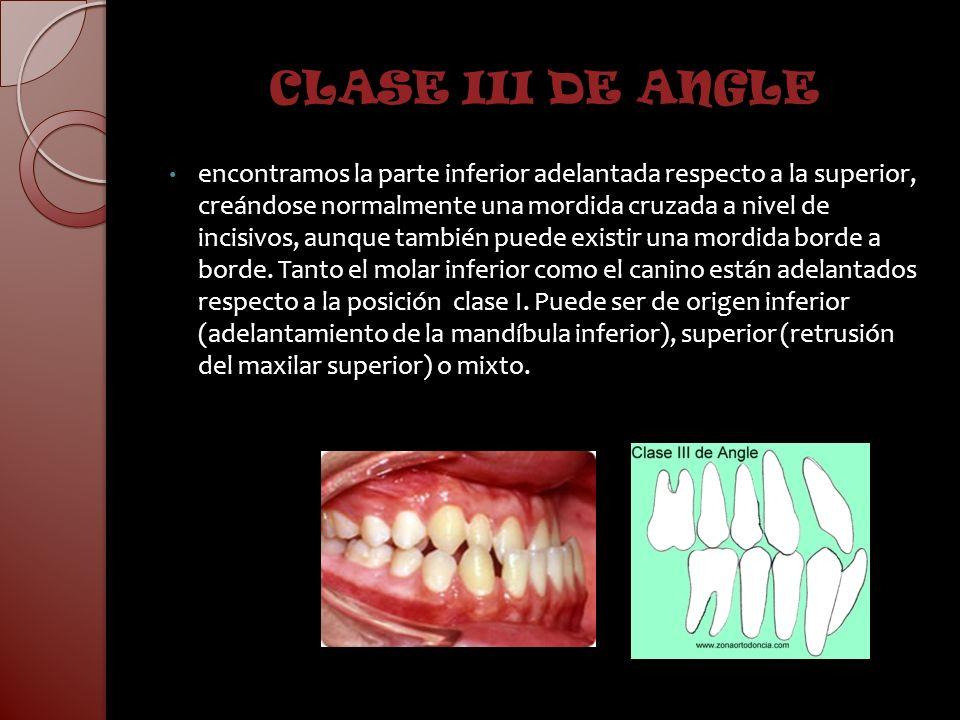 CLASE III DE ANGLE