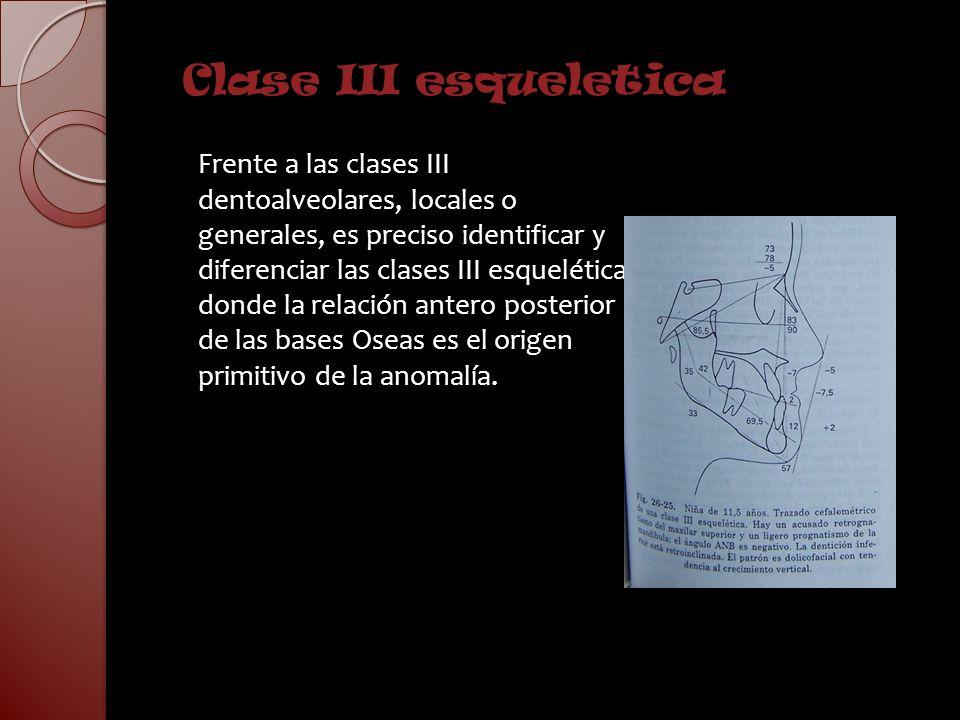 Clase III esqueletica
