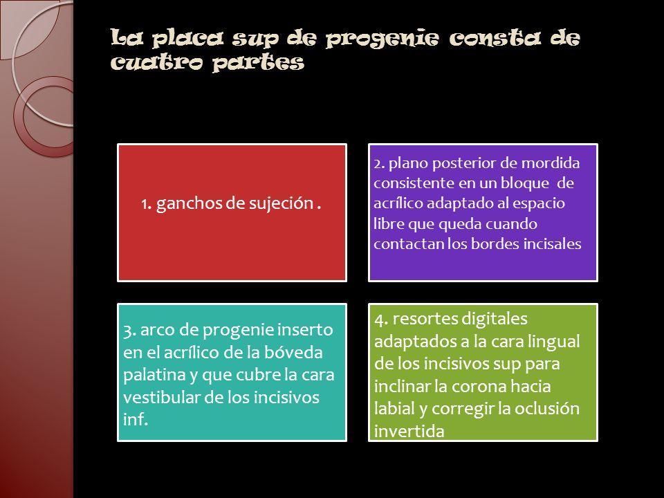 La placa sup de progenie consta de cuatro partes