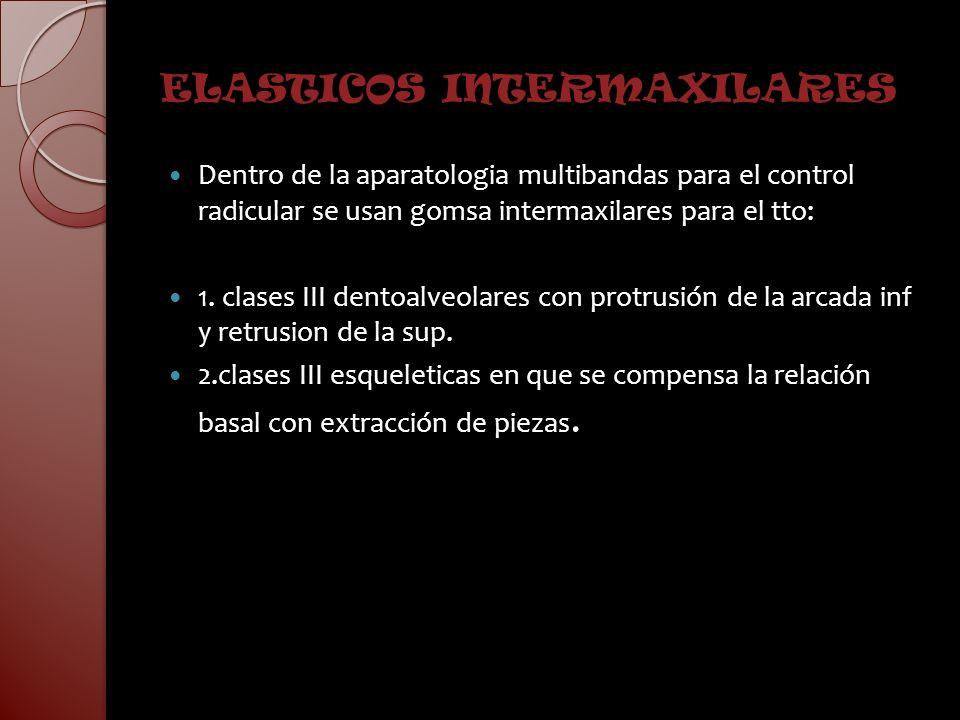 ELASTICOS INTERMAXILARES