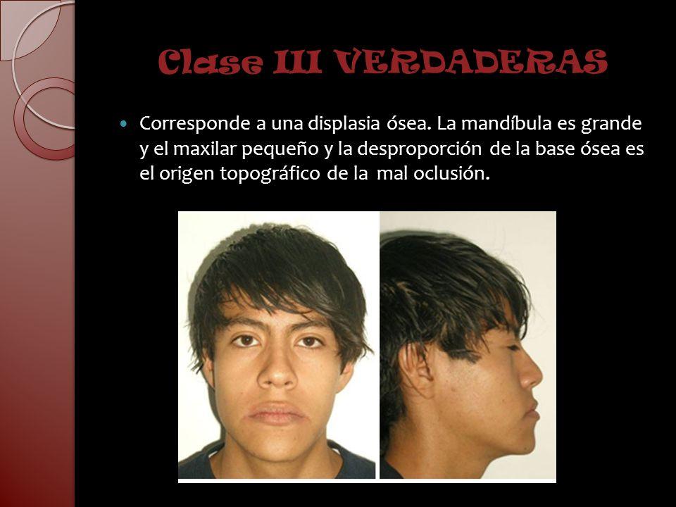 Clase III VERDADERAS