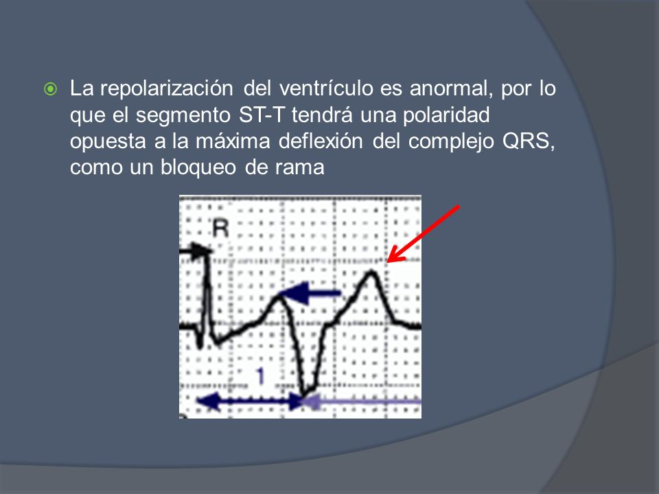 La repolarización del ventrículo es anormal, por lo que el segmento ST-T tendrá una polaridad opuesta a la máxima deflexión del complejo QRS, como un bloqueo de rama