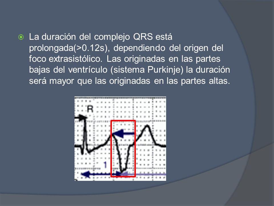 La duración del complejo QRS está prolongada(>0