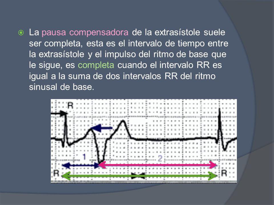 La pausa compensadora de la extrasístole suele ser completa, esta es el intervalo de tiempo entre la extrasístole y el impulso del ritmo de base que le sigue, es completa cuando el intervalo RR es igual a la suma de dos intervalos RR del ritmo sinusal de base.
