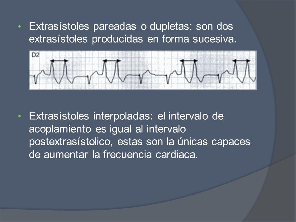 Extrasístoles pareadas o dupletas: son dos extrasístoles producidas en forma sucesiva.
