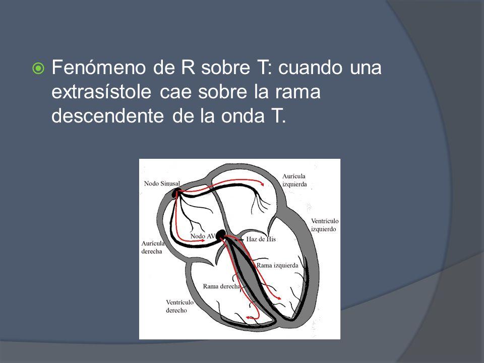 Fenómeno de R sobre T: cuando una extrasístole cae sobre la rama descendente de la onda T.