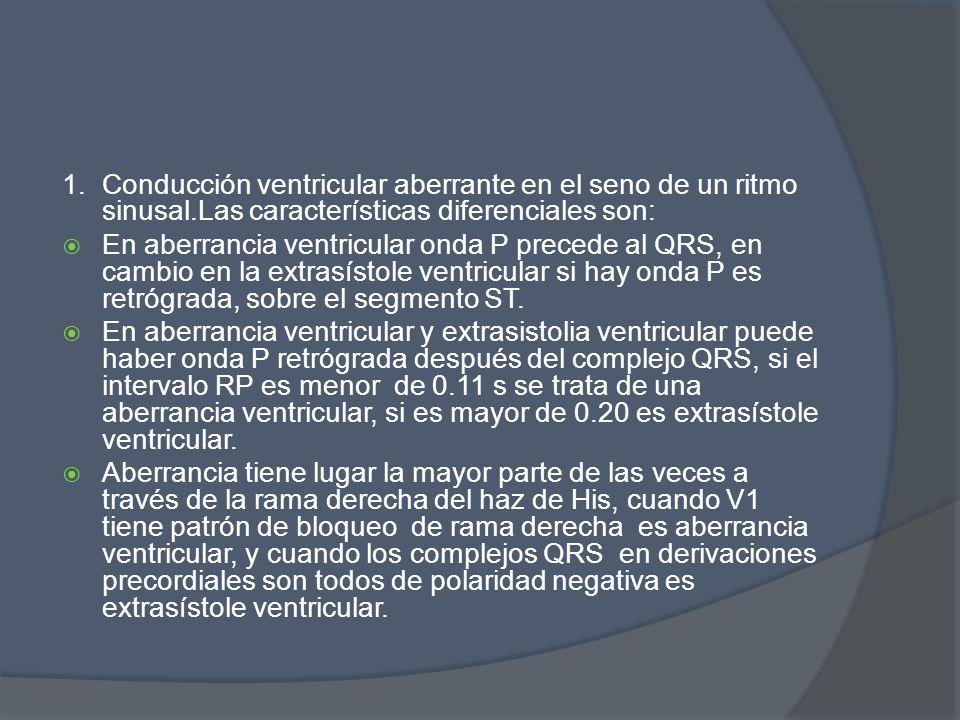 1. Conducción ventricular aberrante en el seno de un ritmo sinusal