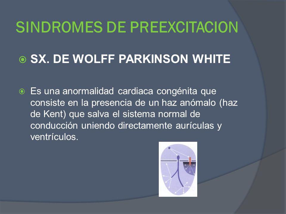 SINDROMES DE PREEXCITACION