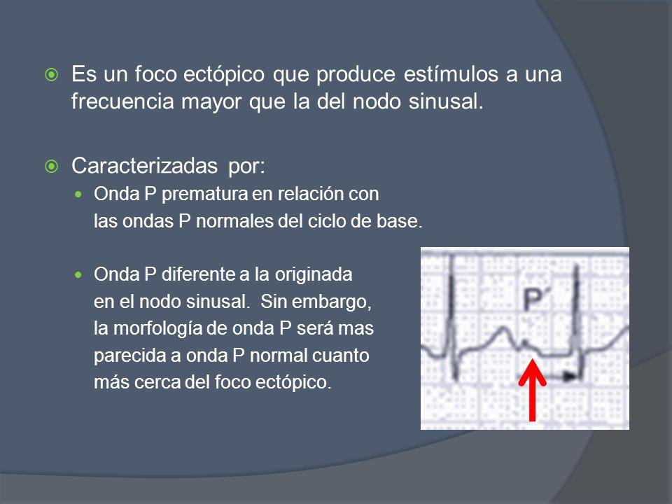 Es un foco ectópico que produce estímulos a una frecuencia mayor que la del nodo sinusal.