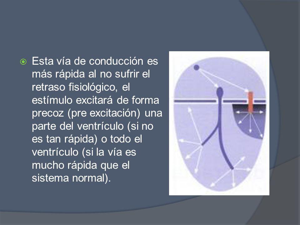 Esta vía de conducción es más rápida al no sufrir el retraso fisiológico, el estímulo excitará de forma precoz (pre excitación) una parte del ventrículo (si no es tan rápida) o todo el ventrículo (si la vía es mucho rápida que el sistema normal).