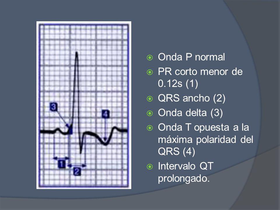 Onda P normal PR corto menor de 0.12s (1) QRS ancho (2) Onda delta (3) Onda T opuesta a la máxima polaridad del QRS (4)
