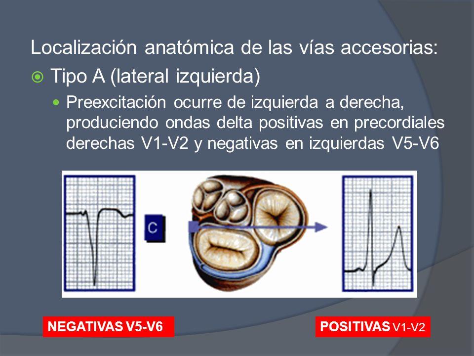 Localización anatómica de las vías accesorias: