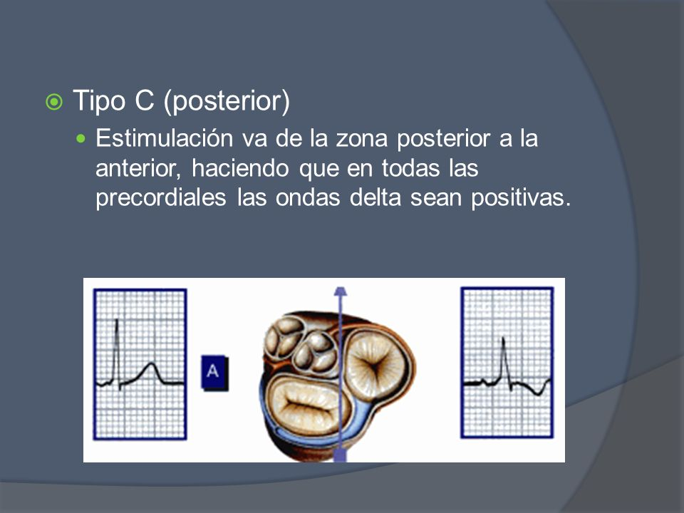 Tipo C (posterior)Estimulación va de la zona posterior a la anterior, haciendo que en todas las precordiales las ondas delta sean positivas.