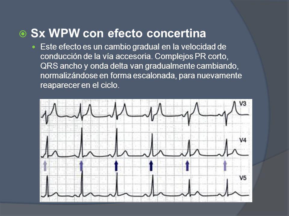 Sx WPW con efecto concertina